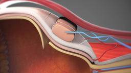 3D Animated Cataract surgery close-up Footage