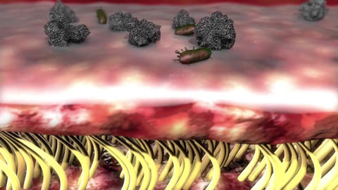 cystic fibrosis virus into the body Footage