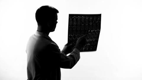 Young male doctor silhouette examining mri result, brain disease, occupation Footage