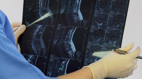 Radiologist assistant learning to describe images, x-ray of spine, consultation Live Action