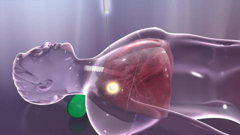 lung cancer biopsy Footage