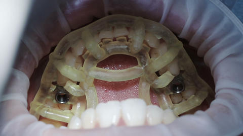 Template with sleeves for directed dental implantation Footage