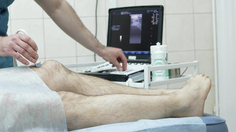 Ultrasound of the knee joint Footage