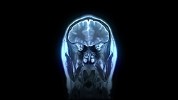 MRI scan Stock Video Footage