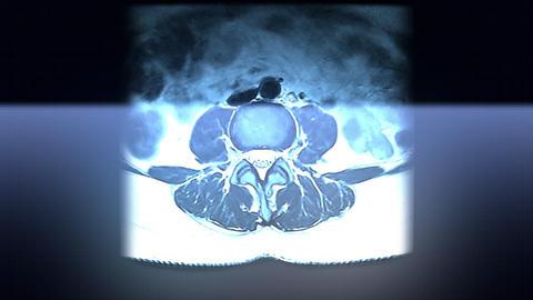 Spine MRI Scan Animation