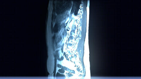 Spine MRI Scan stock footage