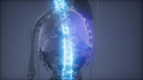 Hurt Spine. Male Backbone. Backache Live Action