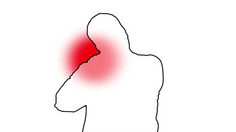 Shoulder Pain Man Silhouette 5 Animation