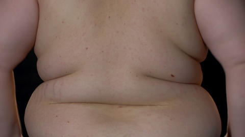 Obese man upset of waist fat folds, weight loss difficulties, overeating effect Live Action