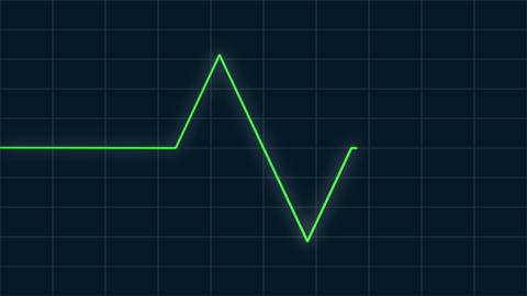 EKG-graph 1 Live影片