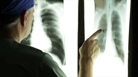 doctor looking at xrays Footage