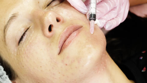 Cosmetologist making face lifting injection Footage