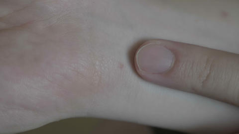Closeup of man hands with dermatitis red spot or rash on sensitive skin Live影片