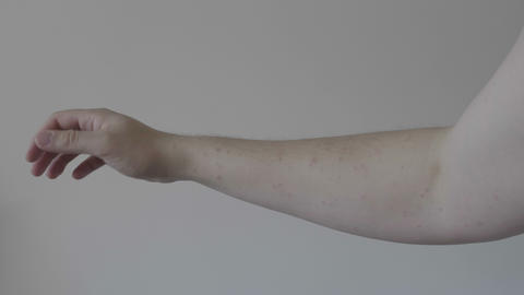 Severe eruption of skin on young allergic man arm dermatological disease concept Live影片