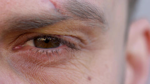 Close-up of handsome male eye is looking at the camera - the eyebrow is cut and Footage