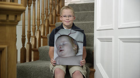 Child holding picture of himself as an infant with a birth defect Footage