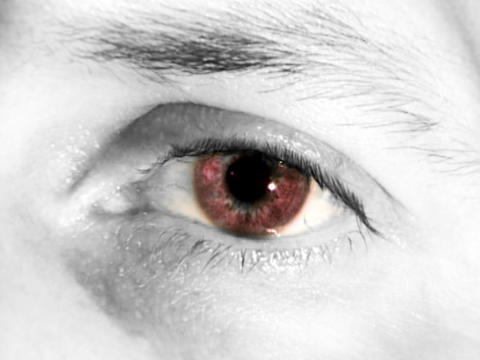 Red Eye Stock Video Footage