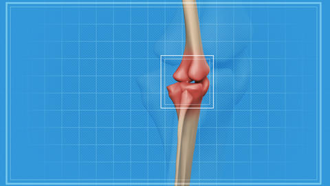 Human knee pain Animation