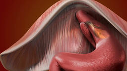 Gastroesophageal reflux disease, 3D Medical Animation Footage