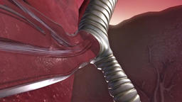 3D Medical Animation of Close-up asthma attack Footage