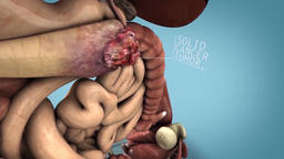 pancreatic cancer 3d animation Footage