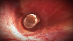Wriggling Human Parasitic Worms Footage