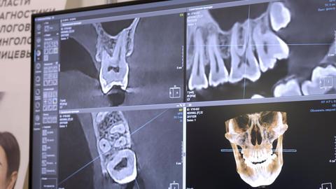 3D dental digital modeling restoration. 3d model of teeth, scanned teeth of the Live Action