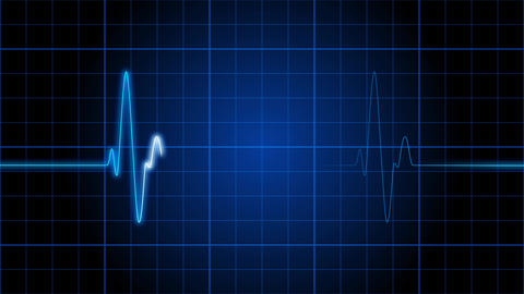 EKG 001: An electrocardiogram heart monitor pulses on a blue grid Animation