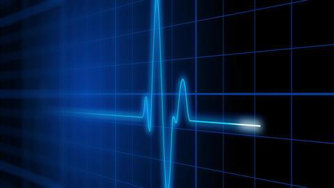 EKG 002: An electrocardiogram heart monitor pulses on a blue grid Animation