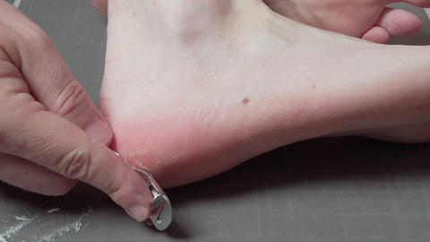 Man removing corn, callus from his feet using a razor file, masculine skin care Live影片