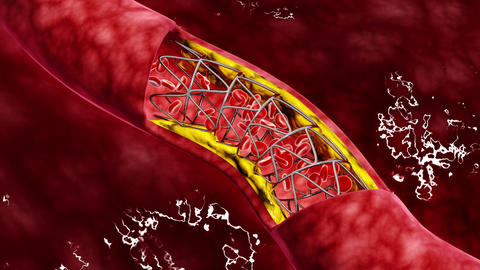 Artery cross-section with blood flow, fat plaque and stent deployment Animation