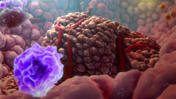 3D Animated Immune Cells Destroy Cancer Cells Footage