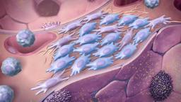 Human respiratory system. Pulmonary disease, Idiopathic Pulmonary Fibrosis  Footage