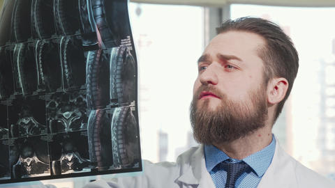 Bearded male doctor examining mri scan of his patient Live Action