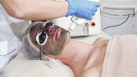 Man getting facial carbon peeling at beauty clinic by professional cosmetologist Live Action