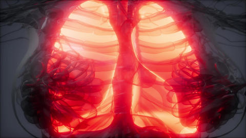 Human Lungs Radiology Exam Live Action
