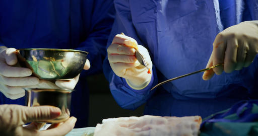 Surgeons performing operation 4k Live Action