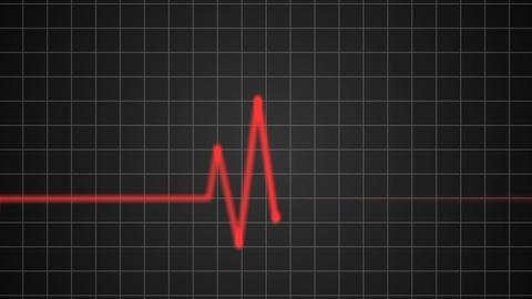 Heartbeat 05 Animation