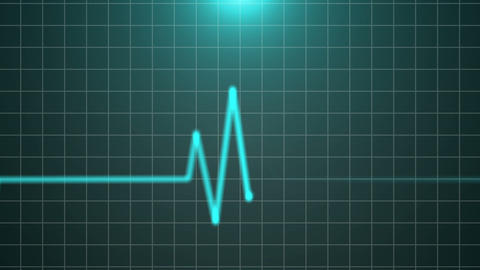 Heartbeat 07 Animation