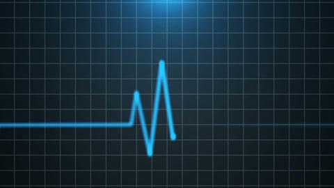 Heartbeat 08 Animation