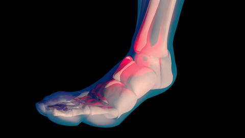 4K Ankle Pain in Human Body Transparent Design with Matte 1 Animation