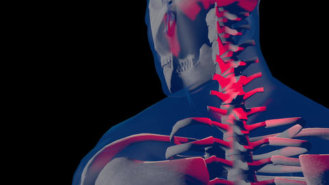 4K Neck Pain in Human Body Transparent Design 1 Animation