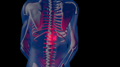 4K Spine Pain in Human Body Transparent Design with Matte 3 Animation