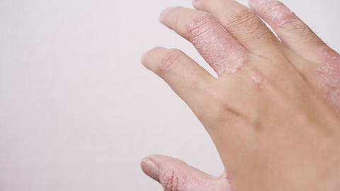 A man with psoriasis on his hand. Right hand Footage
