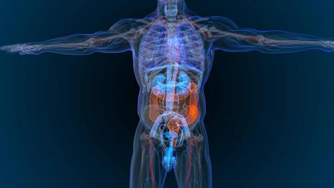 3d rendered illustration of bowel cancer 3D illustration Animation