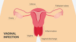 Inflammatory process in vagina (possible pathogens). Gynecology 2D animation Animation