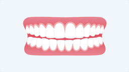 Atrophic Gingivitis. 2D Animation (dental video 4k) Animation