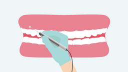 Gingivectomy by laser. 2D dental video 4K Animation
