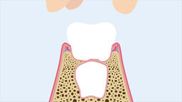 Milk teething (extraction at home by a kid). Dental 2d animation Animation
