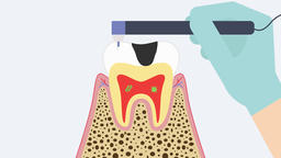 The dental root treatment (deciduous tooth). 2D dental video 4K Animation